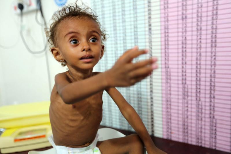 El hambre habría matado a 85 mil niños en Yemen